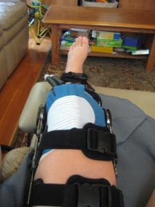 Bionic knee